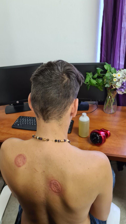 Masážní přístroj Cupping Therapy® photo review